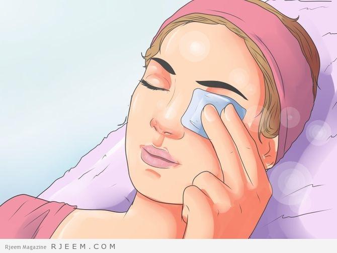 Photo of 10 طرق لعلاج انتفاخ العين منزليا