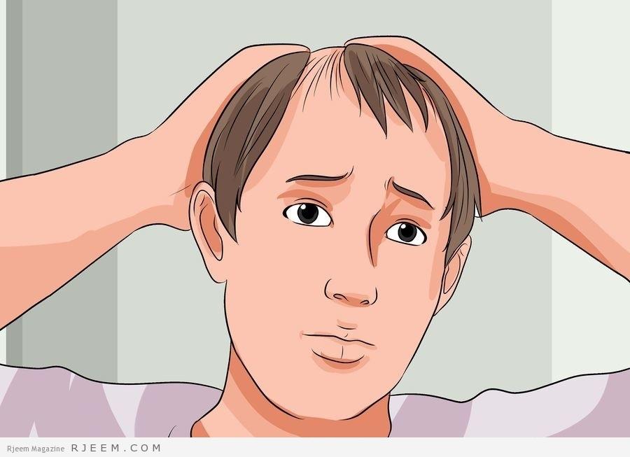 Photo of معلومات عن عملية زراعة الشعر