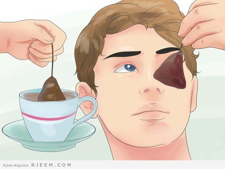 11 طريقة طبيعية لعلاج الهالات السوداء
