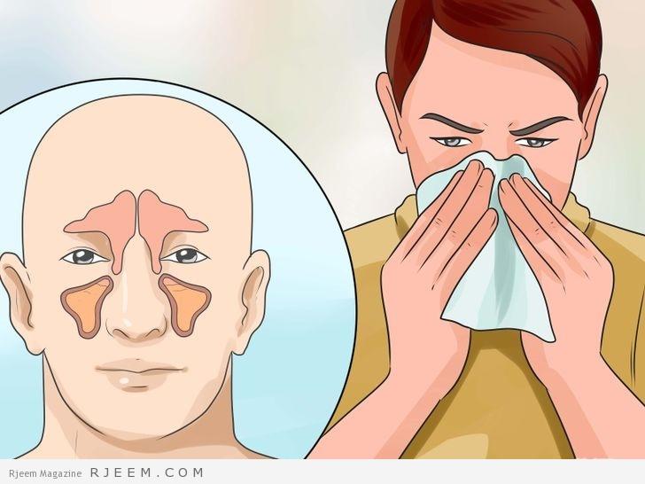 Photo of علاجات طبيعية للتخلص من التهاب الجيوب الأنفية