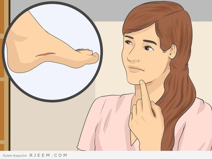 Photo of 17 طريقة طبيعية لعلاج اثار الجروح
