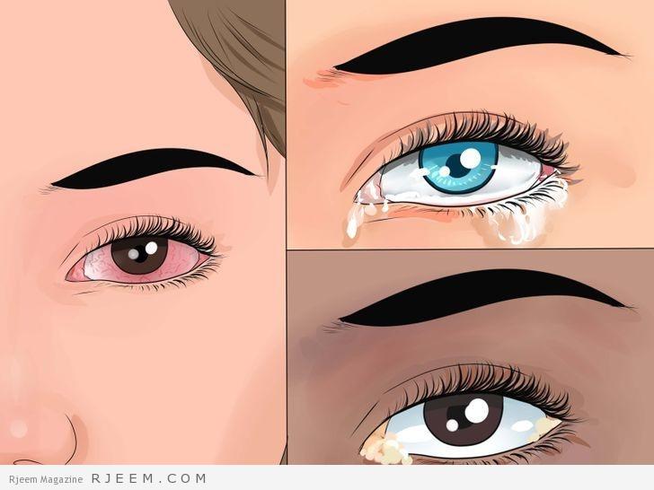Photo of اعراض وعلاج حساسية العين
