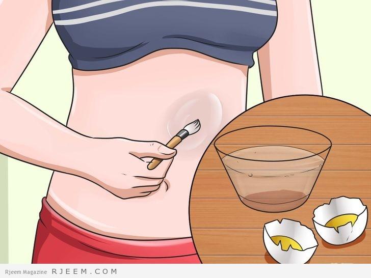 Photo of التخلص من التشققات الجلدية بسبب السمنة او الولادة بخلطة منزلية