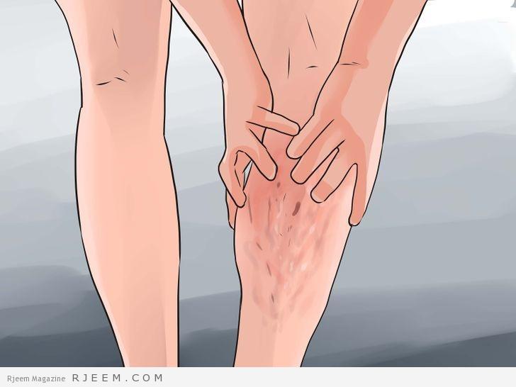 Photo of 10 طرق طبيعية لعلاج الدوالي