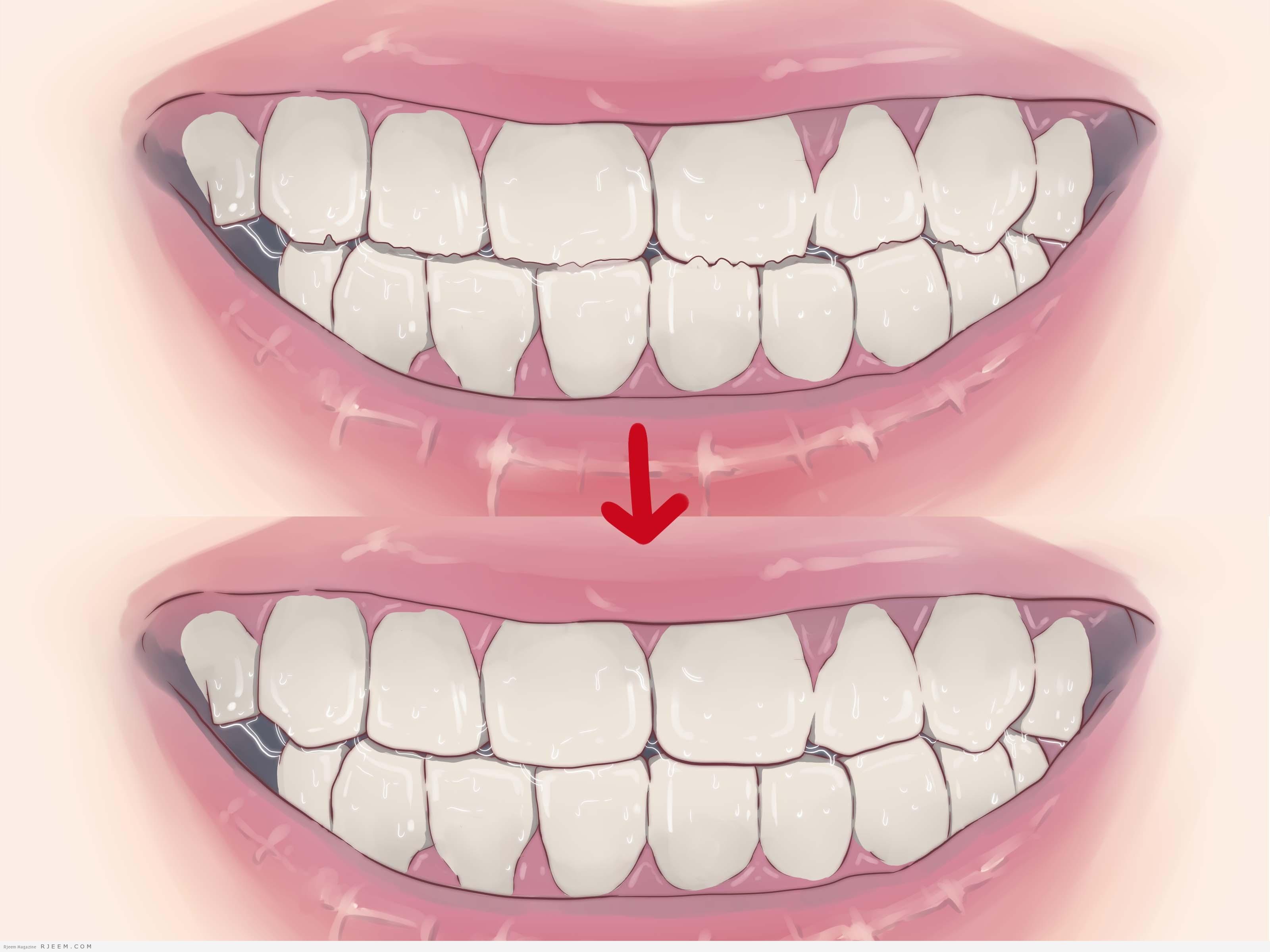 Photo of 7 نصائح للحصول على اسنان صحية وجميلة