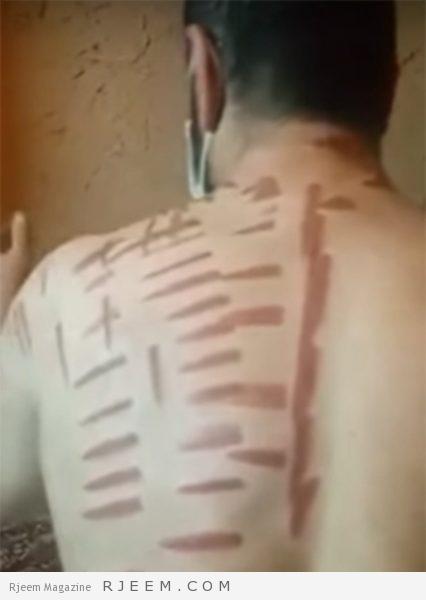 Photo of شاهد: هكذا اصبح جسد ضحية مدعي العلاج بالكي في القصيم
