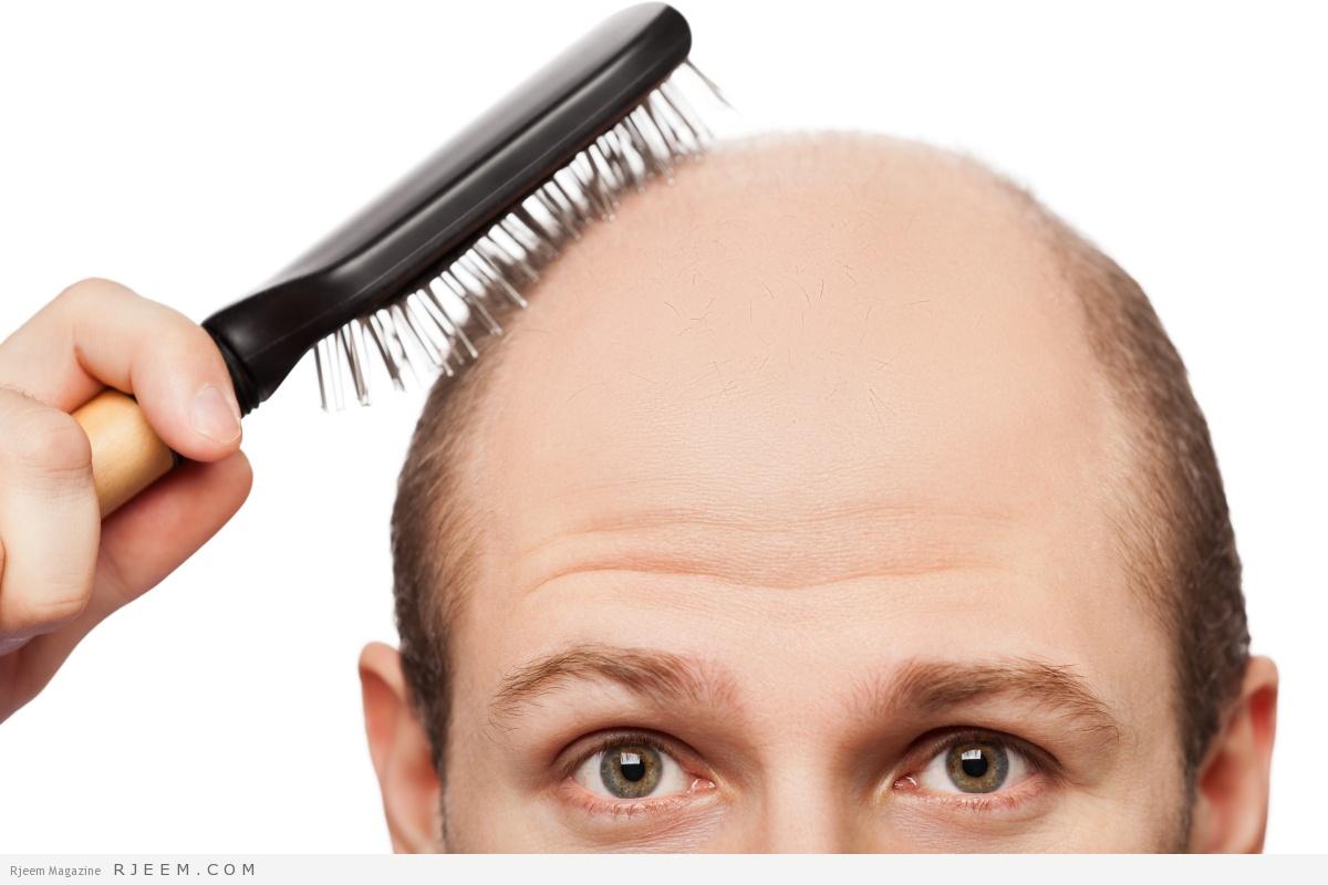 Photo of أسرار ومخاطر زراعة الشعر للرجال.. هكذا تكون الحل الأمثل