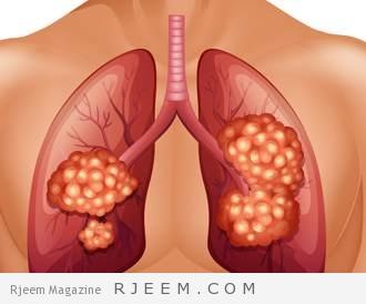 Photo of ما هي المرحلة الثالثة من سرطان الرئة؟