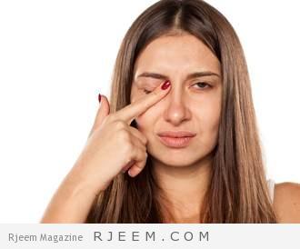 Photo of شعيرة العين: حاربها وامنع إصابتك بها مجدداً