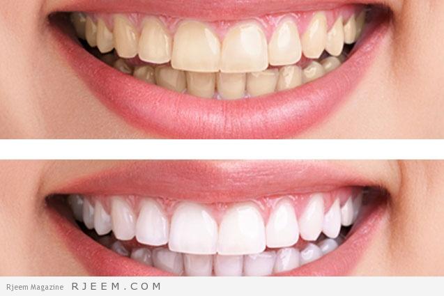 Photo of خلطة البايكنج صودا لتبييض الأسنان