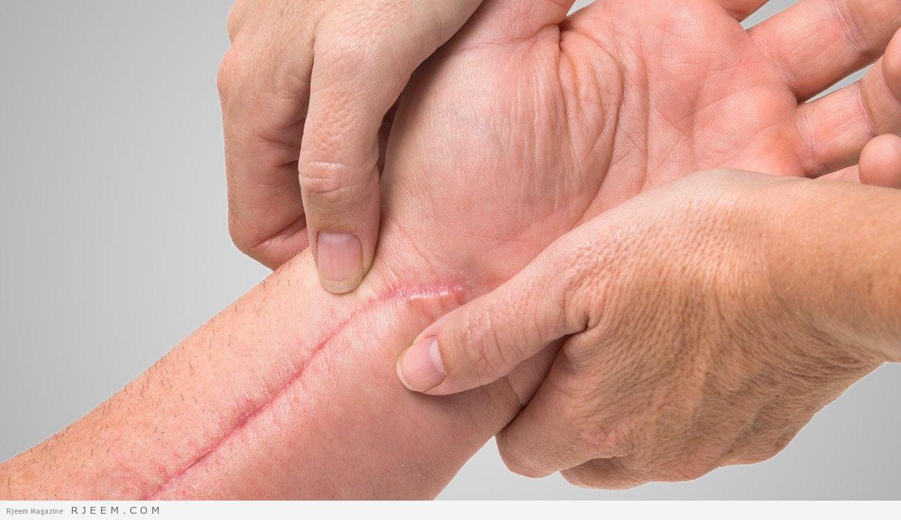 Photo of طبيب ألماني يكشف طريقة للتغلب على الندبات دون أدوية