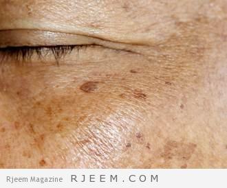 Photo of فعالية علاجات التصبغات الجلدية والكلف