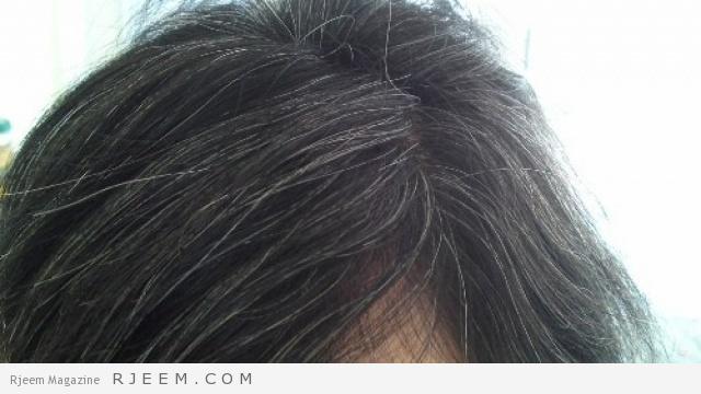 Photo of 5 أسباب لظهور الشيب في شعر الرأس بشكل مبكر.. تجنبيها