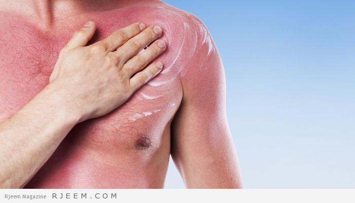 Photo of استخدم هذه الخلطة الطبيعية لعلاج حروق الشمس