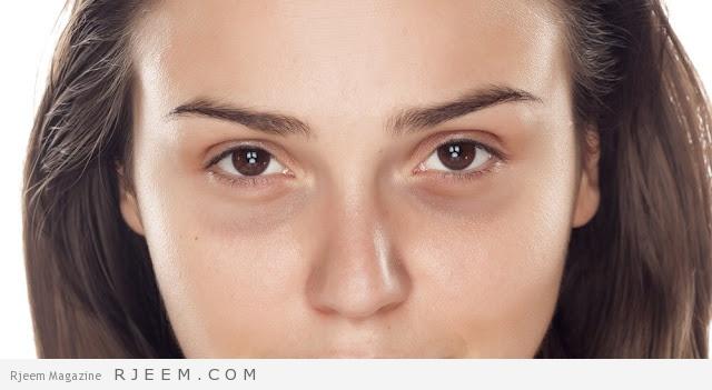 Photo of 10 أهم أطعمة لعلاج الهالات السوداء تحت العين