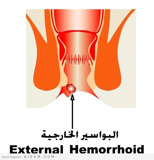 Photo of علاج البواسير الخارجية طبيعيا بدون جراحة