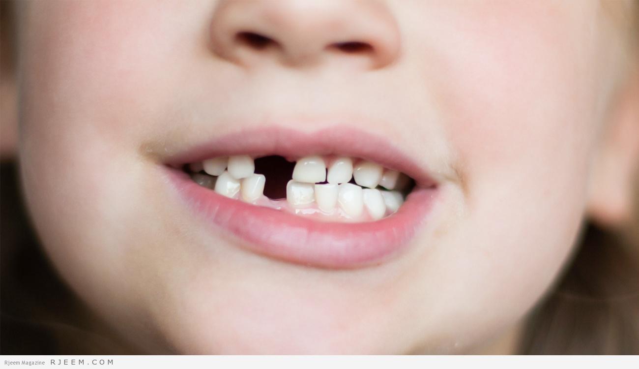 """Photo of هل يعاني طفلك عيوب """"إطباق الأسنان"""".. احترسي حياته مهددة للخطر!"""