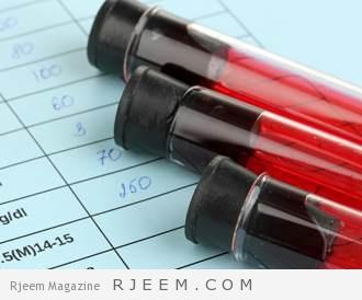 Photo of في سابقة طبية: أول حالة شفاء كامل من الإيدز!