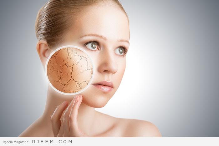 Photo of نصائح للتخلص من جفاف البشرة وتشققات الجلد في الصيف