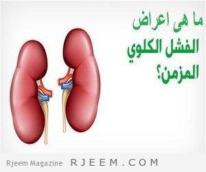 Photo of اسباب و اعراض الفشل الكلوى والفرق بين الفشل الكلوى الحاد و المزمن !!