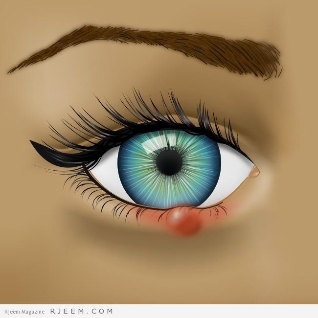 Photo of لماذا يفحص الأطباء العين عند تشخيص المرض؟ 8 أسرار تكشفها عن صحتك