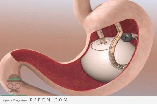 Photo of بالون المعدة للتخسيس وكل ما تريد معرفته عن العملية وفوائدها واضرارها