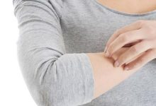 Photo of علاج حساسية الجلد والهرش