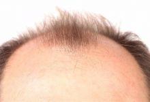 Photo of هل يمكن تحفيز نمو الشعر بطرق طبيعية؟