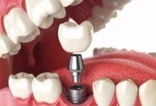 Photo of نصائح مهمة قبل إجراء جراحة زراعة الأسنان