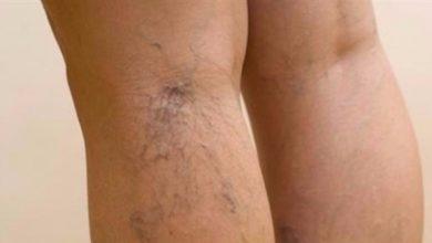 Photo of نصائح لعلاج دوالي الساقين دون جراحة