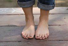 Photo of الأمراض التي تسبب تغيرات في القدمين