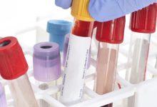 Photo of دراسة حديثة: اختبار دموي قد يساعد على تشخيص عدة أنواع من السرطان بشكل مبكر