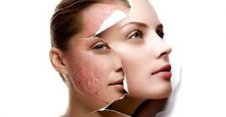 علاج مشاكل البشرة Skin problems