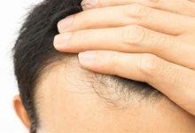 Photo of الجرعة المناسبة من البيوتين لإعادة نمو الشعر