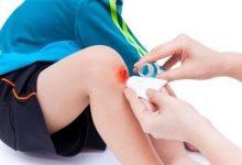 Photo of أفضل علاجات منزلية لوقف النزيف
