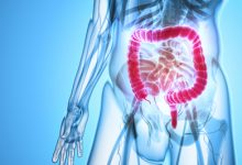 Photo of دراسة حديثة: داء الأمعاء المتهيجة قد يزيد من خطر السرطان عند الأطفال