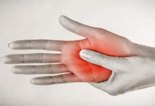 Photo of علاج التنميل في الجسم