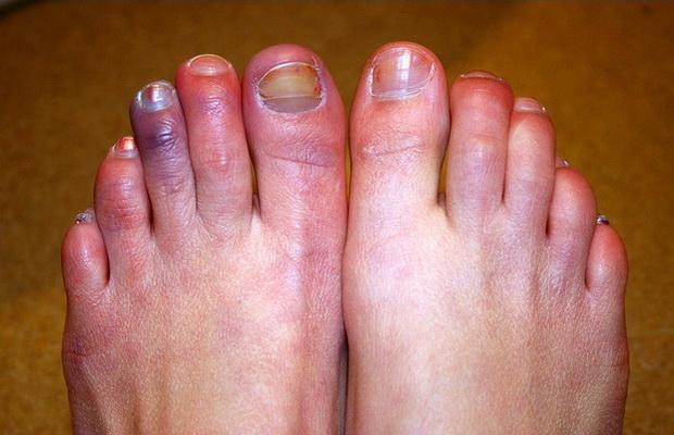علاج تورم الأصابع بوصفات فعالة