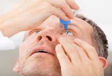 Photo of كيف يتم علاج حساسية العين