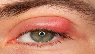 Photo of كيفية علاج التهاب جفن العين