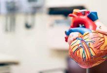 Photo of معلومات عن مرض القلب العصبي