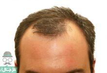 Photo of نصائح هامة قبل اجراء عملية زراعة الشعر لاختيار المكان الصحيح وتكلفة العملية