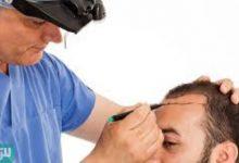 Photo of زراعة الشعر في قطر مميزات وعيوب وتكلفة العملية فى قطر