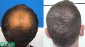 Photo of تكلفة زراعة الشعر في العديد من الدول العربية والأجنبية