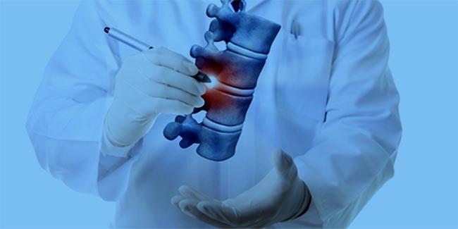 أطباء العظام