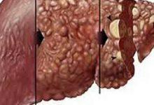 Photo of سرطان الكبد