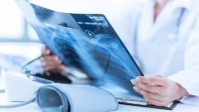 Photo of 8 وظائف تزيد خطر الإصابة بسرطان الثدي