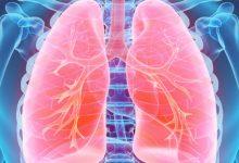 Photo of نصائح صحية: التحري عن سرطان الرئة