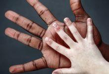 Photo of اكتشاف الجينات التي تمنح الإنسان لون البشرة