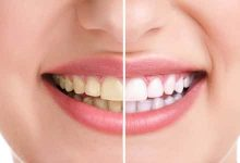 Photo of أسباب اصفرار الأسنان